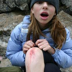 koljeno - a knee